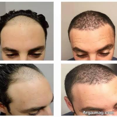 مراحل کاشت مو به روش fit