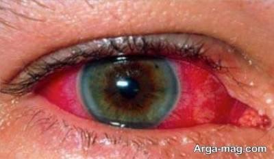 لکه قرمز در چشم
