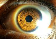 آشنایی با علائم تبخال چشمی