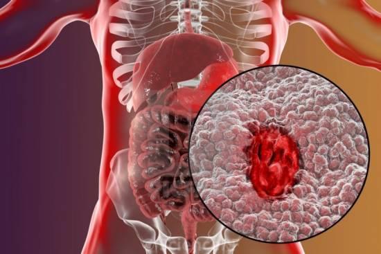 زخم معده: زخم گوارشی ناحیه داخلی معده و بخش فوقانی روده کوچک