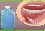 درمان خانگی زخم دهان