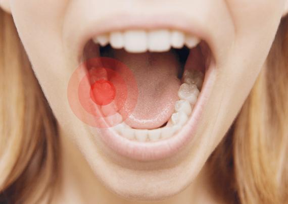 درمان طبیعی دندان درد در خانه