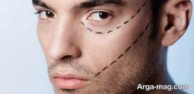 نکاتی مهم قبل از جراحی بینی آقایان