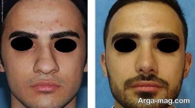 نکات پیش از جراحی بینی آقایان