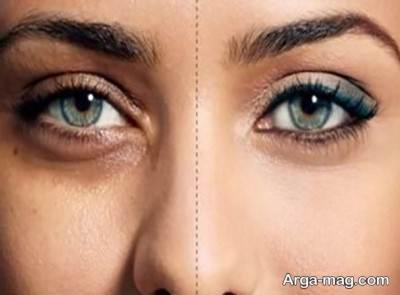 چریش کبودی چشم را درمان می کند
