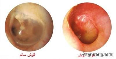 راه های فوری درمان عفونت گوش