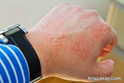 بهترین راه های درمان حساسیت پوستی