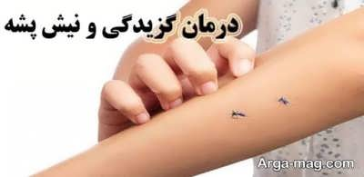 درمان نیش پشه