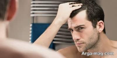 درمان ریزش موها