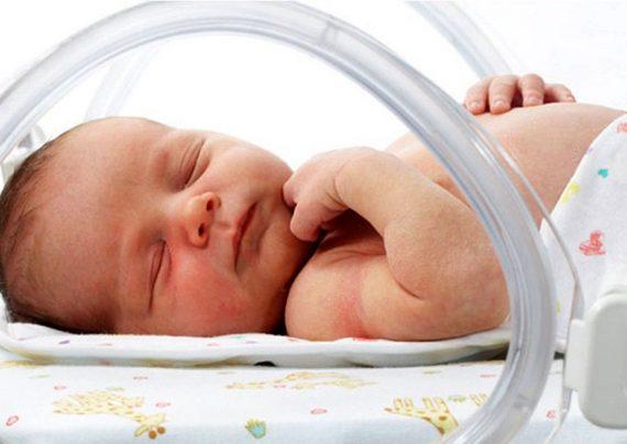 هیپوترمی نوزاد و روش درمان