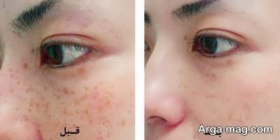 لک صورت و درمان آن