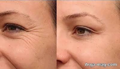 کاهش چروک دور چشم با خیار