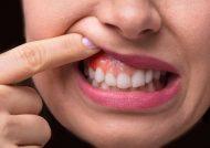 بهترین روش های رفع آبسه دندان