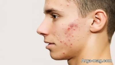 راه کاهش درمان جوش صورت