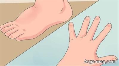 تورم دست ها و پاها ناشی از احتباس