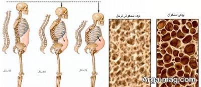 موارد مصرف قرص کلسیتریول