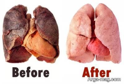 درمان و سالم سازی ریه کثیف