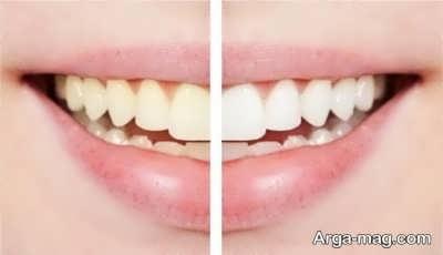 آشنایی با فواید جرم گیری دندان