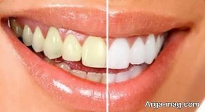 بروساژ دندان