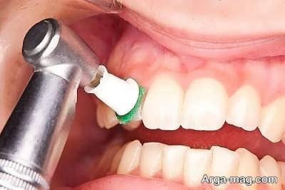 فواید و عوارض جرم گیری دندان