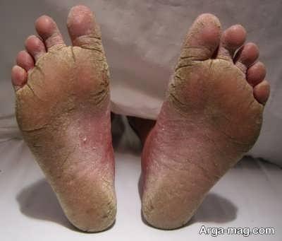 ترک کف پا چیست؟