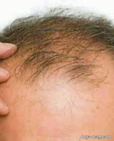 ریزش مو شدید