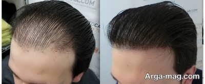 راه جلوگیری از ریزش مو