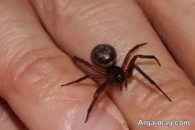 کاهش علائم نیش عنکبوت با راه کارهای خانگی