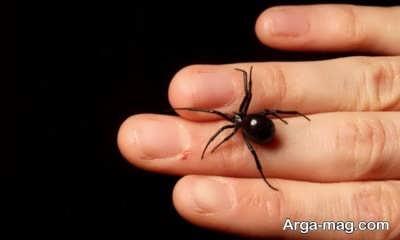 تسکین نیش عنکبوت با روش های طبیعی
