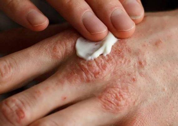 درمان قطعی اگزما با روش های خانگی