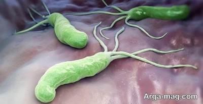 موثر ترین راه های درمان میکروب معده