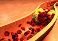 درمان چربی خون با روش های طبیعی و خانگی