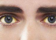 بررسی علت زردی چشم