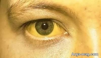 بررسی علل زردی چشم
