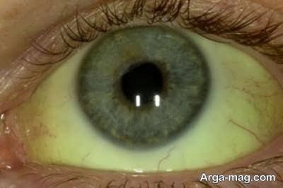 علت زردی چشم و شناخت علایم آن