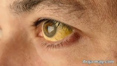 علت زرد شدن چشم و روش درمان آن