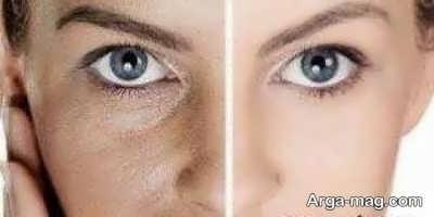 علل چربی پوست