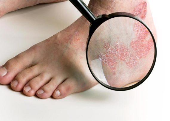 درمان خانگی پسوریازیس و آشنایی با علائم این بیماری پوستی