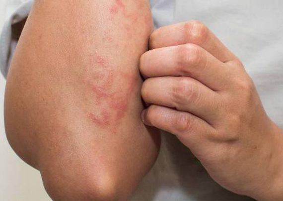 روش های درمان خانگی حساسیت پوستی