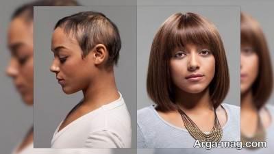 نکات مهم درباره کاشت مو به روش hrt