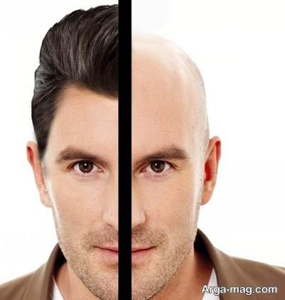 کاشت مو به روش hrt