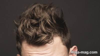 کاشت مو به روش اچ آر تی