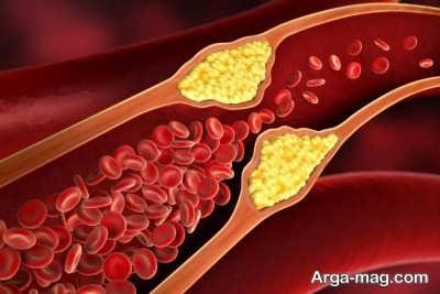 درمان موثر شریان های مسدود شده