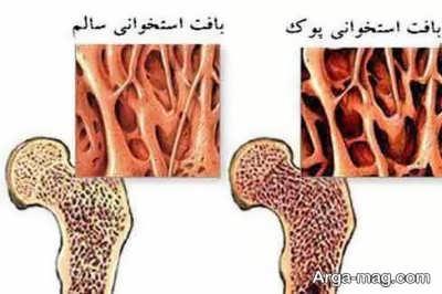 علل ایجاد پوکی استخوان