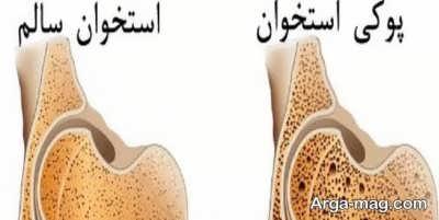 بهبود پوکی استخوان با روش های طبیعی