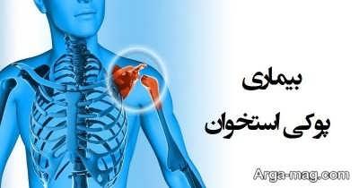 درمان بیماری پوکی استخوان