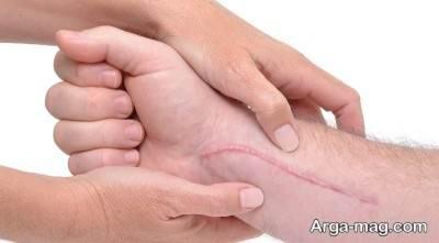فواید بی نظیر انار برای پوست