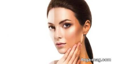 عوامل ایجاد کننده تیرگی پوست