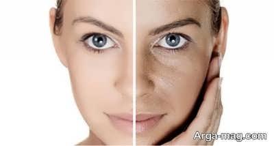 رفع تیرگی پوست با روش های طبیعی