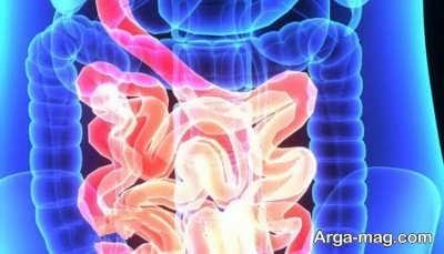 علایم کولیت روده و روش های رفع آن